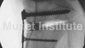 Neuroapraxia tras osteotomia valguizante de tibia