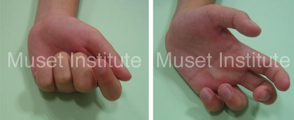 Fracturas supracondíleas de húmero - Paralisis nervio cubital y mediano